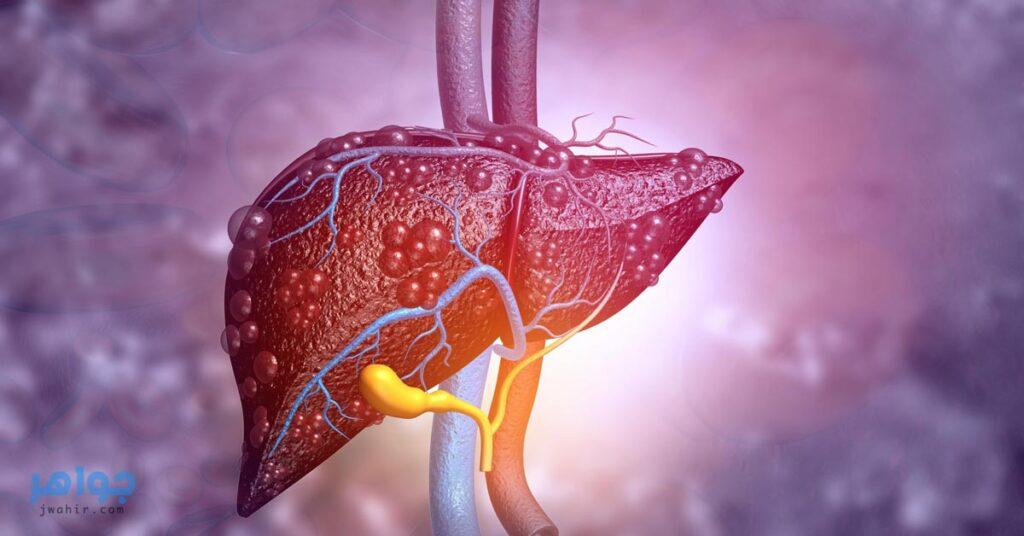 علاج دهون الكبد