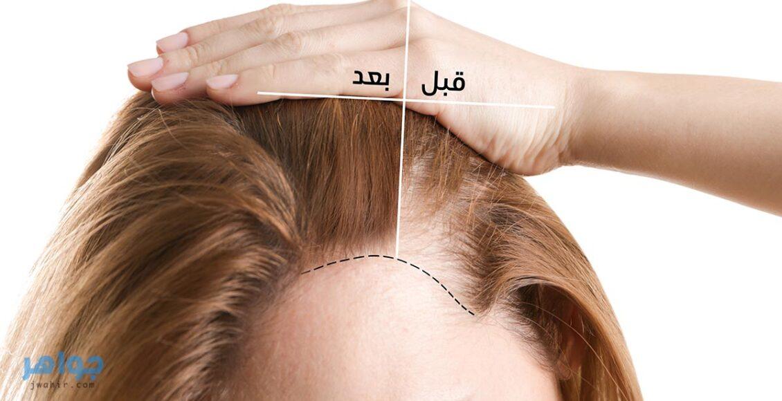 ترميم الشعر